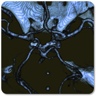 Example: Computed tomopgrahy (CT) angiograph of an aneurysm